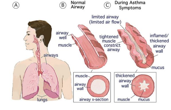 What Is Asthma A Detailed Overview And What Can Help